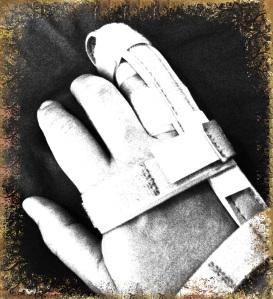 Broken finger in splint